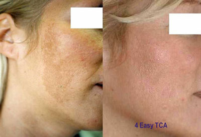 Before and After Easypeel