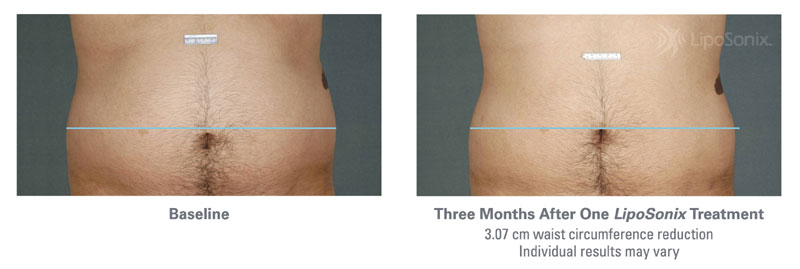 Before and After Liposonix Treatments