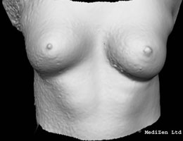 Digital Imaging of Breast After Macrolane Treatment