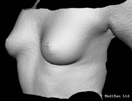 Digital Imaging of Breast Before Macrolane Treatment