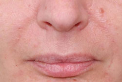 Nasolabial folds immediately after treatment with Belotero