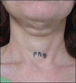 Neck before treatment with Tripollar RF