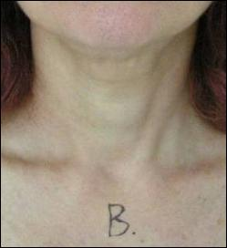 Neck after treatment with Tripollar RF