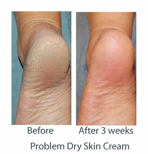 http://www.consultingroom.com/uploads/Image_Directory/Product/Neostrata-Problem-Dry-Skin-Feet.jpg