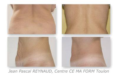 Before and After Treatment with Osyris Pharaon Lipo Laser