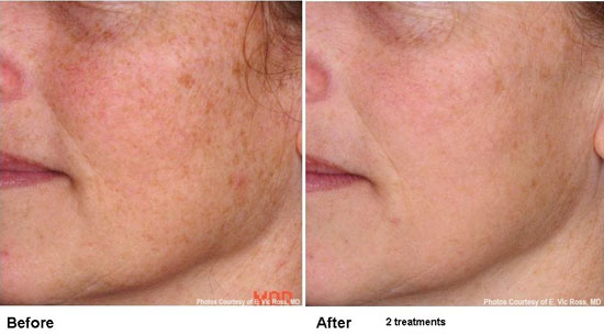 Before and After two treatments with the Pearl YSGG Laser
