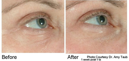 Before and After one treatment with the Pearl YSGG Laser