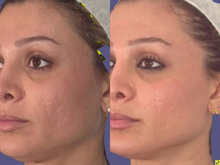 Before and After -  Scarring Treated with Pixel Laser