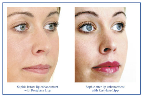 Restylane Lipp Clinical Results