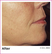 After Treatment with Sculptra