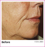 Before Treatment with Sculptra