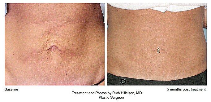 Thermage before and after for stomach tighetning