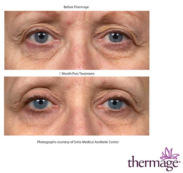 Before and After Thermage Eyes Treatment