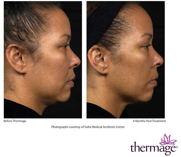 Before and After Thermage face treatment
