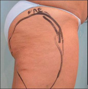 Thigh before treatment with Tripollar