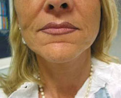 Nasolabial folds after treatment with Varioderm
