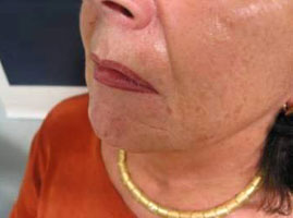 Skin surface, nasolabial folds and marionette lines after treatment with Varioderm