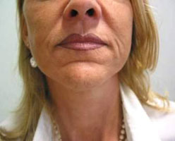 Nasolabial folds before Varioderm treatment