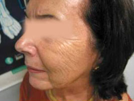 Nasolabial folds and marionette lines before Varioderm treatment