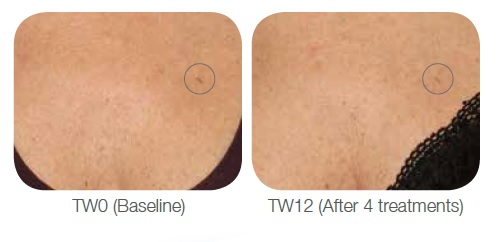 Viscoderm Treatment for UV Damage