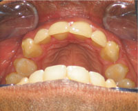 Protruding (buck) teeth corrected after Invisalign treatment