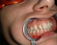 Crooked teeth before Invisalign treatment