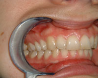 Crowded and overlapping teeth corrected after Invisalign treatment