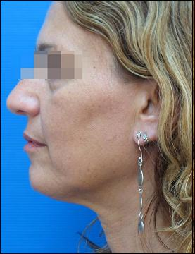 Face after 6 sessions of Tripollar treatment