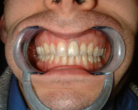 Gappy teeth corrected after Invisalign treatment
