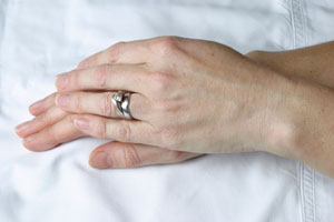 Hands After Restylane Vital Treatment