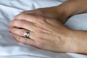 Hands Before Restylane Vital Treatment