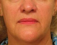 Face 2½ months after Titan treatment