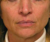 Face 2 months after two Titan treatments