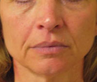 Face before Titan treatment