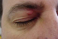 wart on eyelid