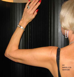 Post Upper Arm Lift Surgery