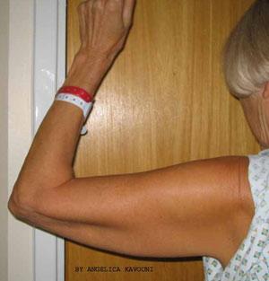Pre Upper Arm Lift Surgery