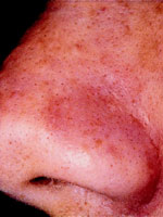 After Comedone Removal With Microdermabrasion