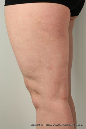 After sclerotherapy treatment on leg veins