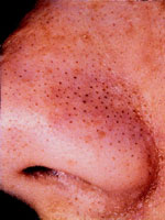 Before Comedone Removal With Microdermabrasion