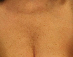 Female, décolletage 6 weeks post treatment with Belotero®.