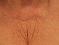 Female, décolletage before treatment.