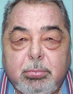Eyebags Before Radiosurgery Blepharoplasty
