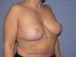 Post Breast Reduction Surgery