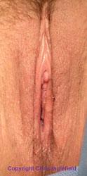 Post Labiaplasty Surgery
