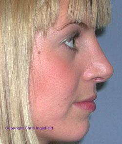 Post Rhinoplasty (Nose) Surgery