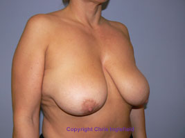Pre Breast Reduction Surgery