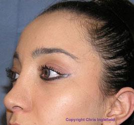 Pre Mid-Face Lift Surgery
