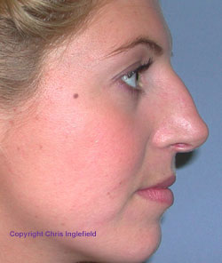 Pre Rhinoplasty (Nose) Surgery