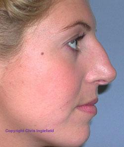 Pre Rhinoplasty (Nose) Surgery